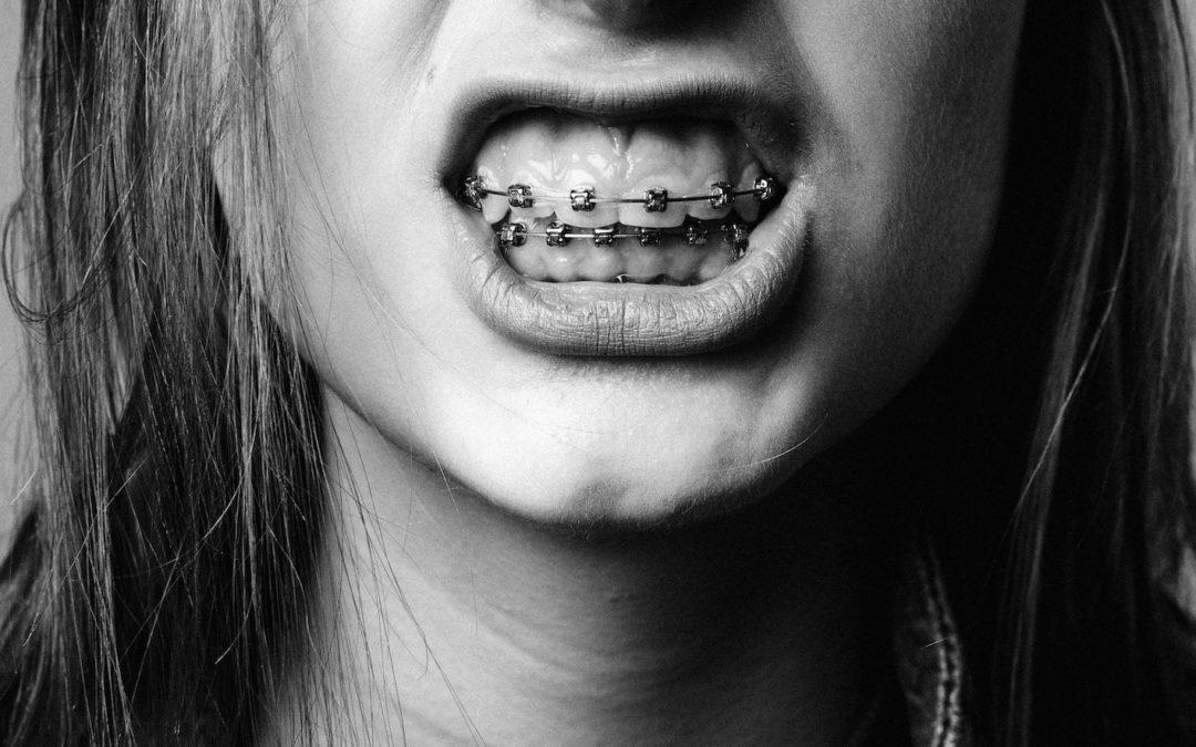 Les français et leur santé dentaire