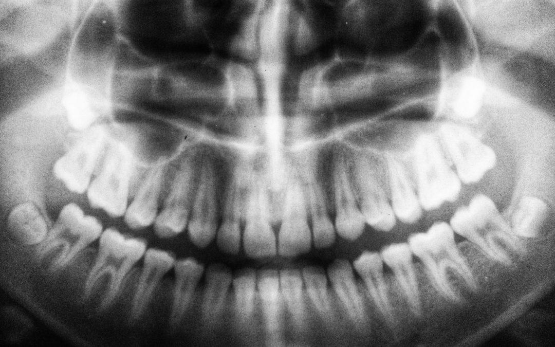Dents dévitalisées et maladie