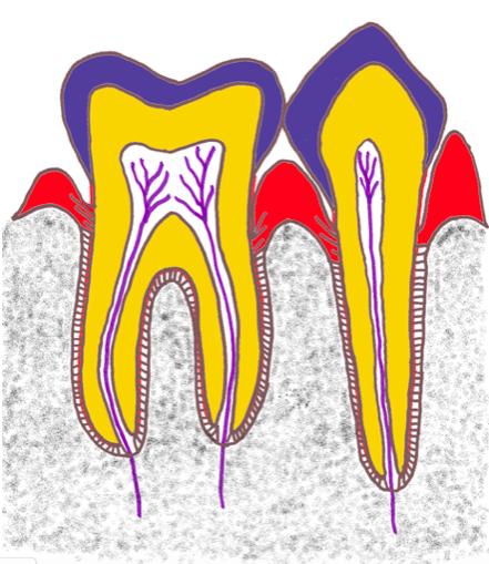 Traitement parodontal, c'est quoi ?